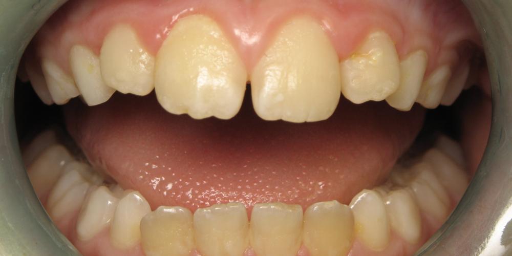 Окрашивание зубов, профессиональная гигиена зубов