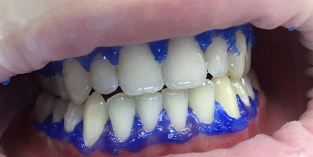 Результат отбеливания зубов системой Smileffect