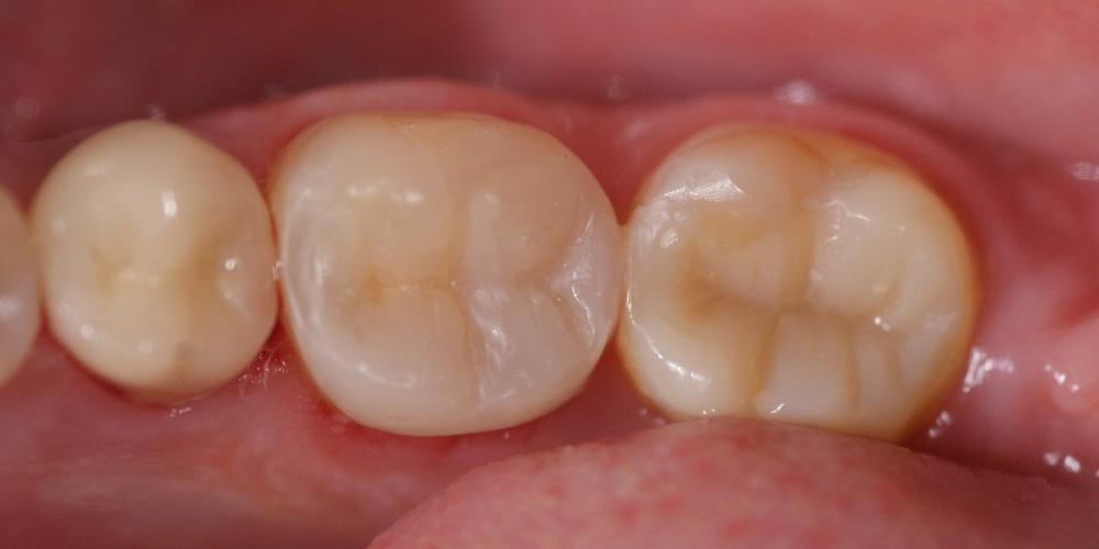 Установка безметалловой вкладки на жевательный зуб