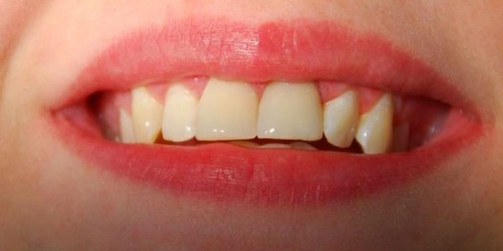 Установка двух безметалловых коронок E Max на 2 передних зуба