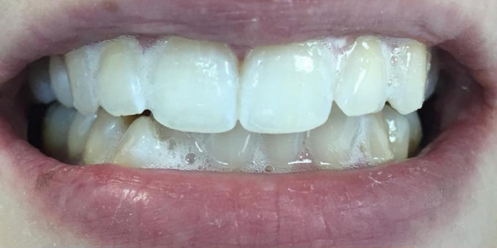 Результат отбеливание зубов системой Smileffect