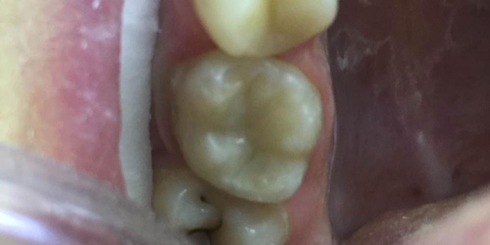 Замена несостоятельной пломбы зуба 1.6, рецидив кариеса