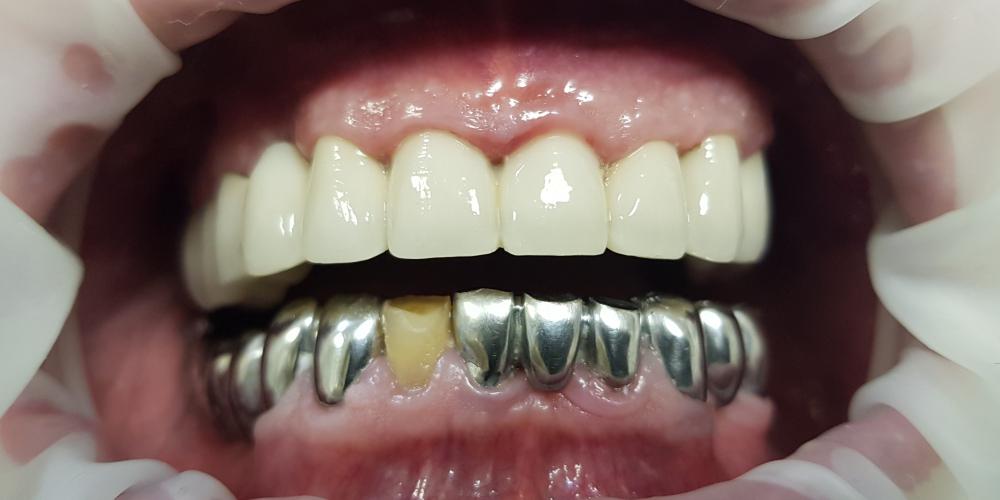 Замена металлопластмассовых мостовидных протезов верней челюсти
