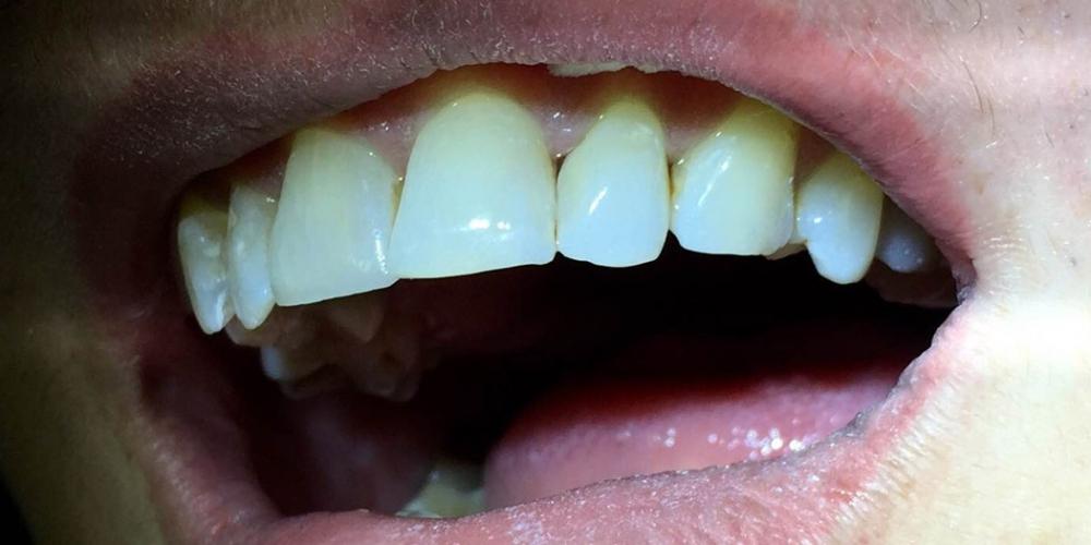 Эстетическая реставрация фронтальной группы зубов верхней челюсти