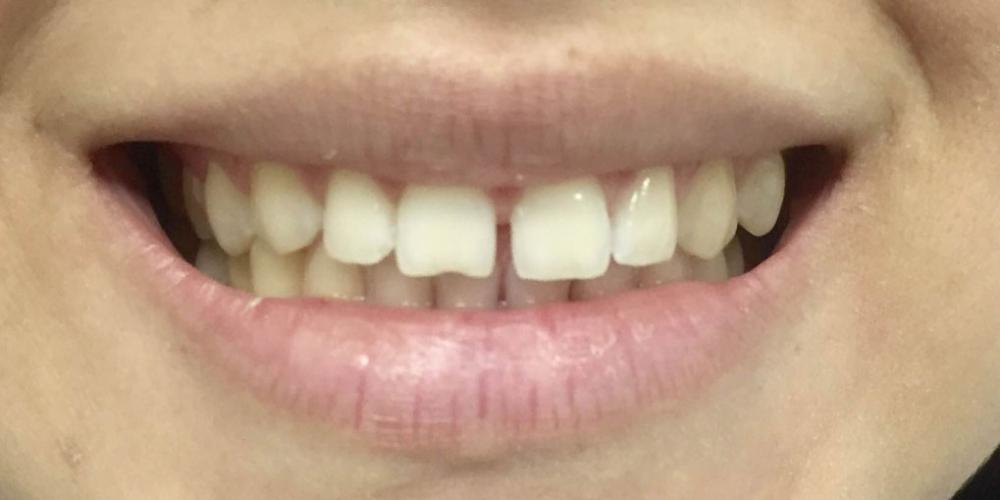Изготовление керамических (фарфоровых) виниров E-max на фронтальную группу зубов верхней челюсти