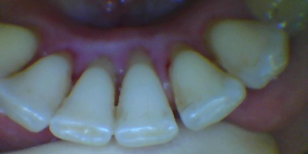 до Шинирование передних зубов с целью профилактики выдвижения зубов