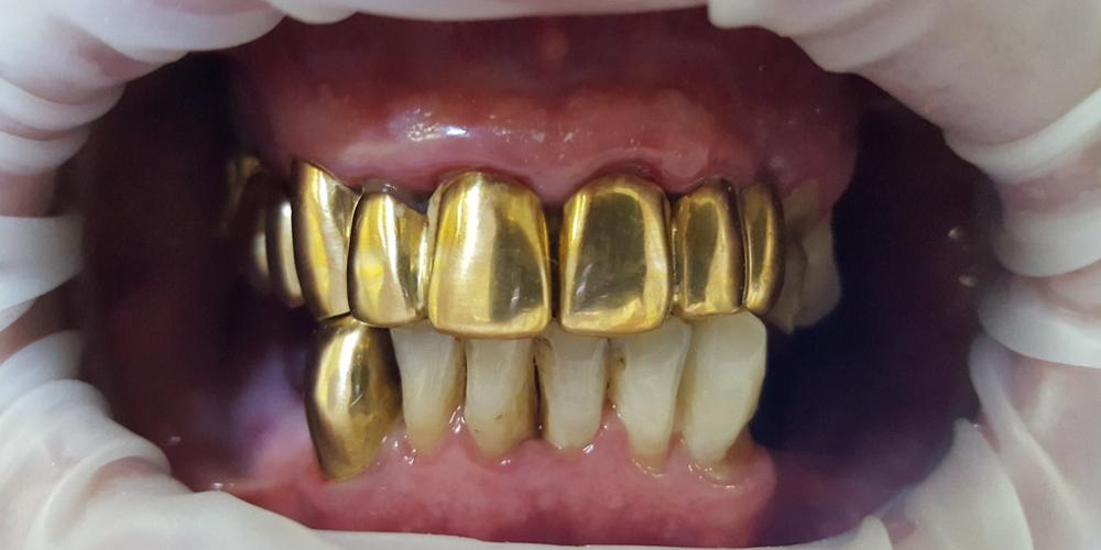 Замена коронок из золота на металлокерамические