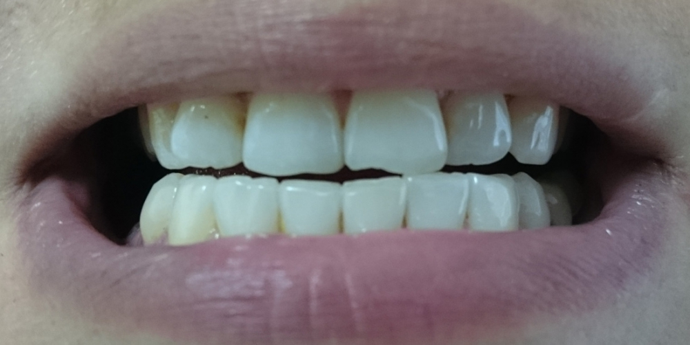 Пришлифовка суперконтактов фронтальных зубов