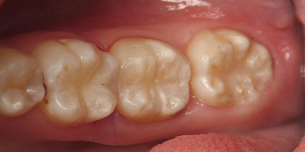 Лечение глубокого кариеса с установкой световой пломбы 3 зубов