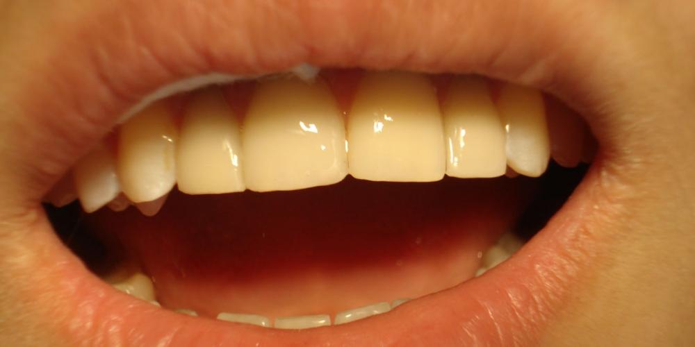 после Реставрация фронтальной группы зубов верхней челюсти, внутриканальное отбеливание