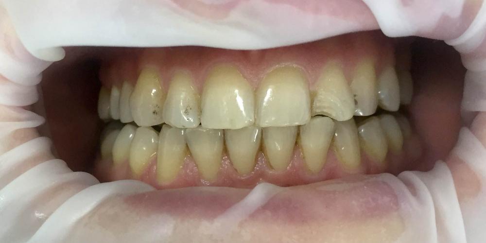 Проведена эстетическая реставрация зуба 2.2, материал Filtek Ultimate