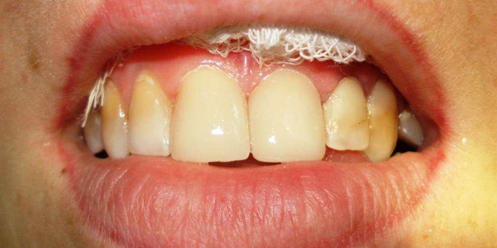 Устранение промежутка (диастемы) между центральными резцами верхней челюсти