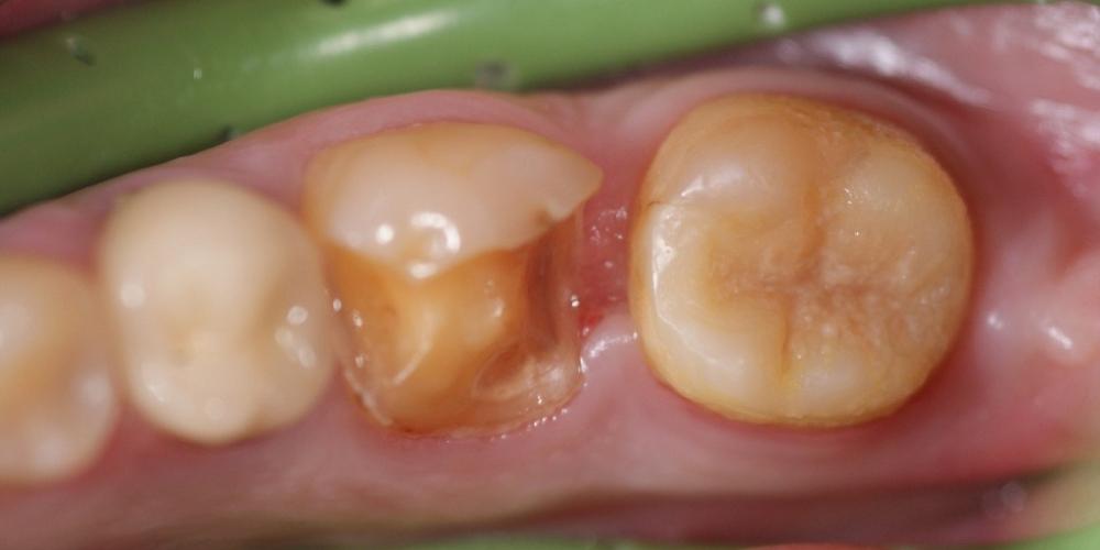 Безметалловая вкладка в зуб