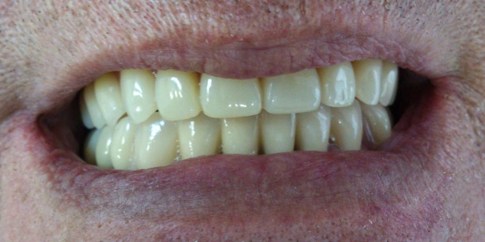 Протезирование при полном отсутствии зубов верхней челюсти и жевательных зубов нижней челюсти