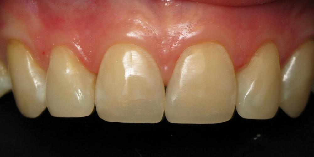 Восстановление режущего края передних зубов