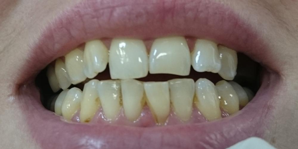 Пришлифовка суперконтактов фронтальных зубов с последующей полировкой