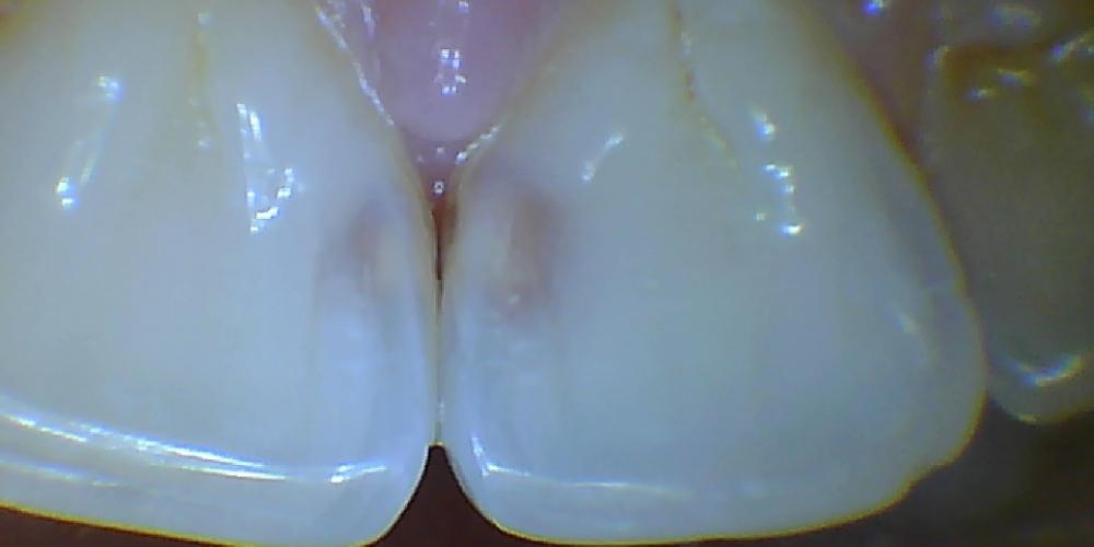 до Лечение среднего кариеса передних зубов
