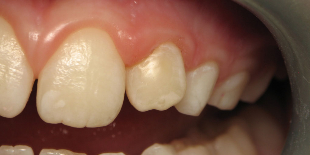 Лечение клиновидного дефекта 2-го центрального зуба