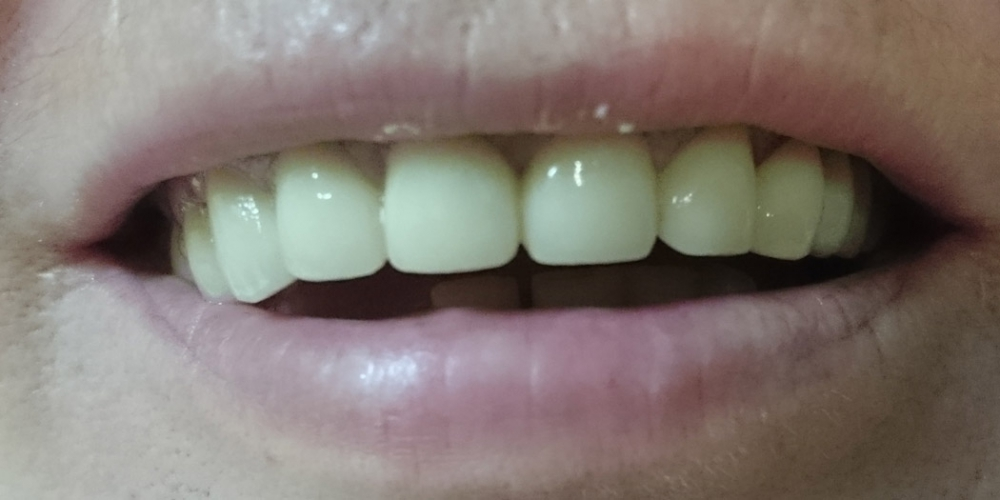 Восстановление эстетики и анатомической целостности зубного ряда верхней челюсти