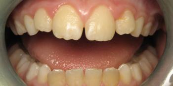 Окрашивание зубов, профессиональная гигиена зубов фото до лечения
