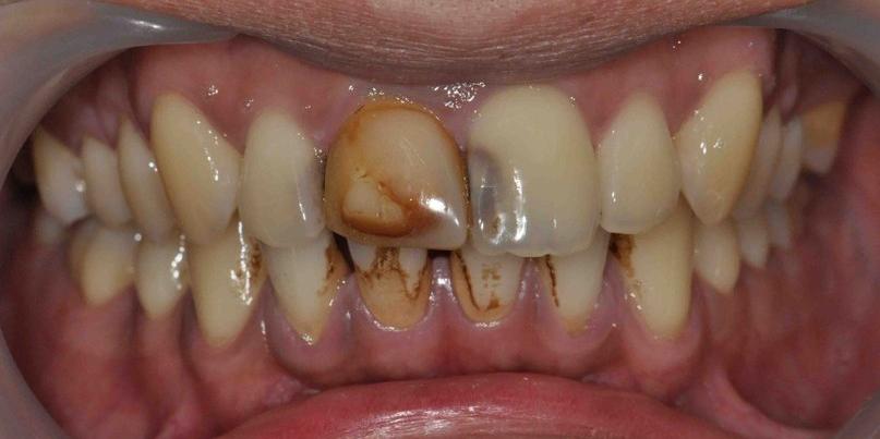 Восстановление передних зубов из композитного материала и безметалловой коронки