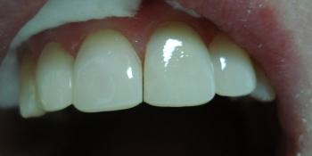 Эстетическая реставрация фронтальной группы зубов верхней челюсти фото после лечения
