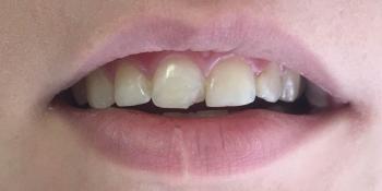 Эстетическое восстановление скола переднего зуба фото до лечения