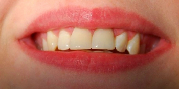 Установка двух безметалловых коронок E Max на 2 передних зуба фото после лечения