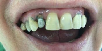 Восстановление эстетики и анатомической целостности зубного ряда верхней челюсти фото до лечения