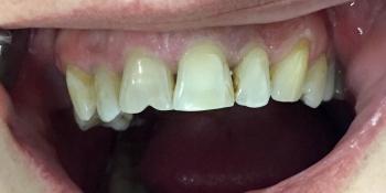 Эстетическая реставрация фронтальной группы зубов верхней челюсти фото до лечения