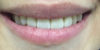 Изготовление керамических (фарфоровых) виниров E-max на фронтальную группу зубов верхней челюсти фото после лечения