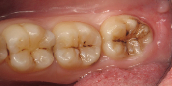Лечение глубокого кариеса с установкой световой пломбы 3 зубов фото до лечения
