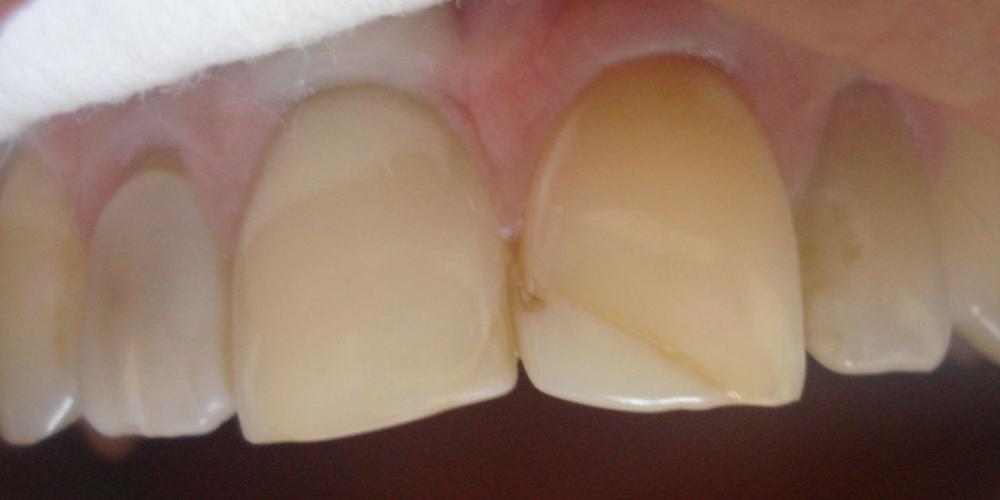 после внутриканального отбеливания Реставрация фронтальной группы зубов верхней челюсти, внутриканальное отбеливание
