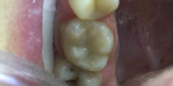 Замена несостоятельной пломбы зуба 1.6, рецидив кариеса фото после лечения