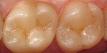 Лечение среднего кариеса с наложение световой пломбы фото после лечения