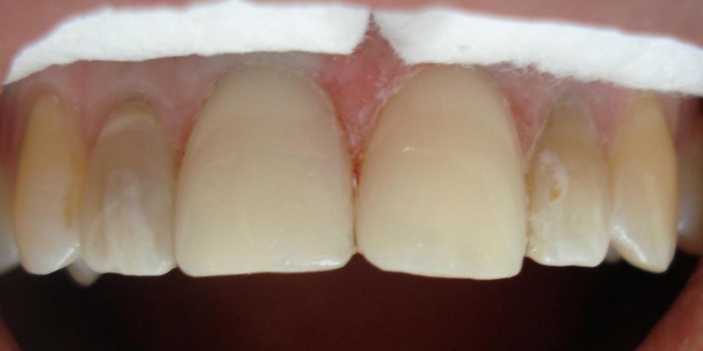 облицовка центр Реставрация фронтальной группы зубов верхней челюсти, внутриканальное отбеливание