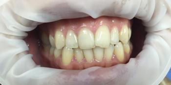 Результат отбеливания зубов системой отбеливания Smileffect фото до лечения