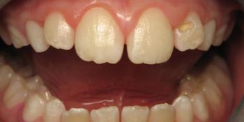 Окрашивание зубов, профессиональная гигиена зубов фото после лечения