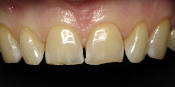 Восстановление режущего края передних зубов фото до лечения