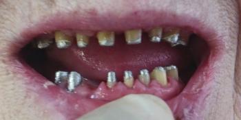 Восстановление формы и высоты фронтальных зубов и восполнение отсутствующих жевательных зубов фото до лечения