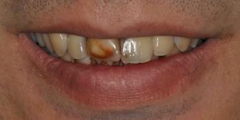 Восстановление передних зубов из композитного материала и безметалловой коронки фото до лечения