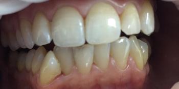 Результат отбеливание зубов системой Smileffect фото до лечения