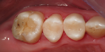 Замена амальгамных пломб с установкой световой пломбы фото после лечения