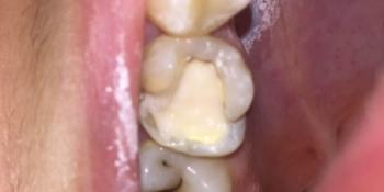 Замена несостоятельной пломбы зуба 1.6, рецидив кариеса фото до лечения
