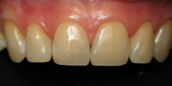 Восстановление скола переднего зуба фото после лечения