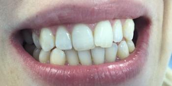 Результат отбеливания зубов системой отбеливания Smileffect фото после лечения