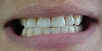 Пришлифовка суперконтактов фронтальных зубов фото после лечения