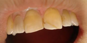 Реставрация фронтальной группы зубов верхней челюсти, внутриканальное отбеливание фото до лечения