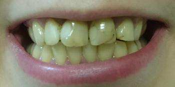Керамические коронки на основе диоксида циркония (ZrO2) на 4-х фронтальных зубах фото до лечения