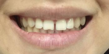 Изготовление керамических (фарфоровых) виниров E-max на фронтальную группу зубов верхней челюсти фото до лечения